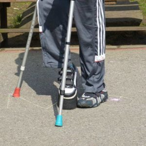 man with foot injury on crutches